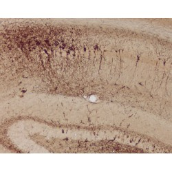 Immunohistochemistry Of Transgenic Model Of Neurofibrillary Degeneration