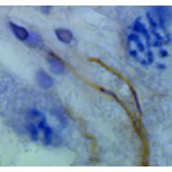 Immunohistochimie (Testicule humain)